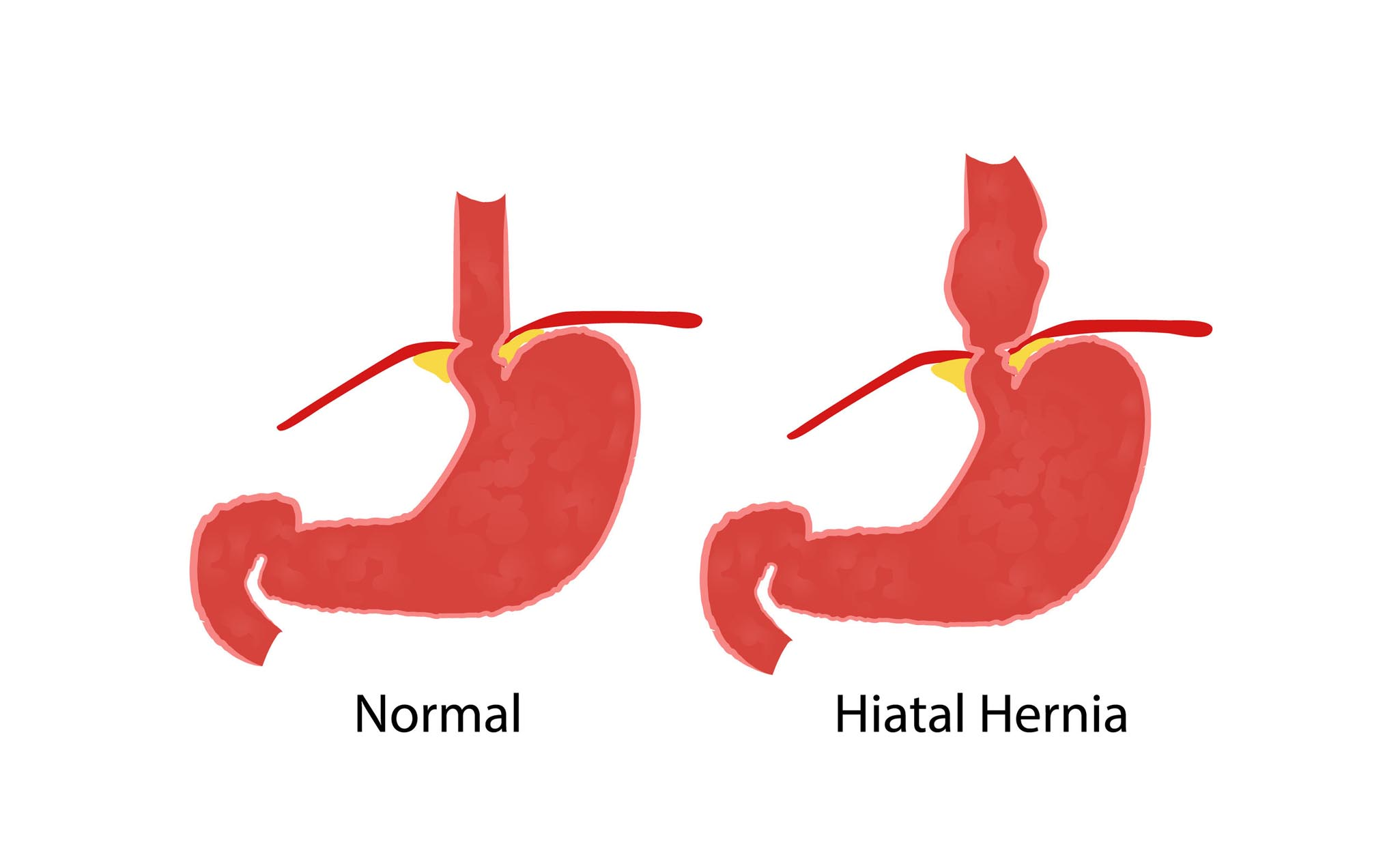 Inguinal Hernia, inguinal hernia surgeon ramsey nj